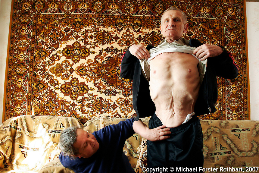 "Photo title:.Viktor Gaidak shows his scar..Caption:.Viktor and Lydia Gaidak sit in their apartment in Desnyanskiy district at the outskirts of Kyiv. Viktor Gaidak worked for 24 years as an engineer at the Chernobyl plant, including 9 years after the 1986 accident. In 2004 he had surgery for colon cancer...Today, nearly half the 49,360 evacuees from Pripyat live in Troeshchina, a new neighborhood at the edge of Kyiv, where they face health problems, unemployment, crowded apartments and insufficient government support...Quote: .""When I was sick with cancer, we sold our car to pay for the surgery. We sold our TV, we sold our refrigerator, jewelry, everything we could. Now my wife Lydia has cancer and there's nothing left to sell."".-- Viktor Gaidak, Chernobyl engineer.-------------------.This photograph is part of Michael Forster Rothbart's After Chernobyl documentary photography project..© Michael Forster Rothbart 2007-2010..www.afterchernobyl.com.www.mfrphoto.com o 607-267-4893 o 347-722-0479.20 Gardner Place, #59, Oneonta, NY 13820.86 Three Mile Pond Rd, Vassalboro, ME 04989.info@mfrphoto.com.Photo by: Michael Forster Rothbart.Date:  4/2007    File#:  Canon 20D digital camera frame 4662"