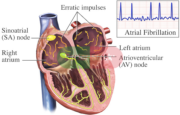 Atrial fibrillation doctor stock this medical exhibit depicts the electrical system of the heart cardiac conduction system during ccuart Images