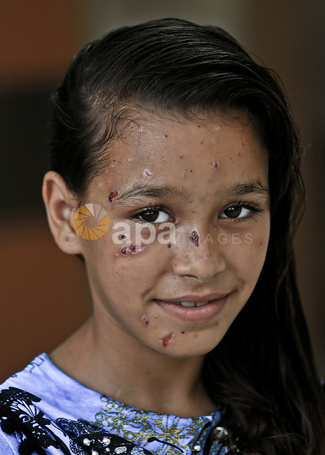 A 9-year-old Palestinian girl Dalia Khalifa, poses for a picture at al-Shifa hospital in Gaza City on August 09, 2014. Dalia has been badly wounded all over her body following an Israeli air strike during the offensive on Gaza Strip. Photo by Mohammed Asad