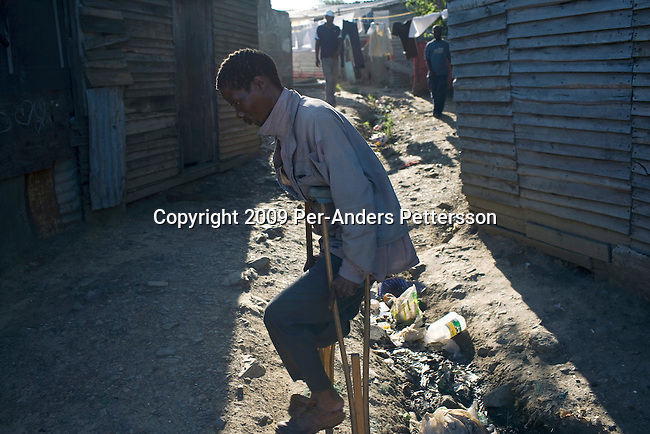 EAST LONDON, SOUTH AFRICA - MARCH 10: A crippled man walks next to a garbage pile on March 10, 2009, in Duncan Village a poor township outside East London, South Africa. This area is one of the most popular ANC areas and many of its leaders grew up in the Eastern Cape province. Many people are disappointed in the ruling party and after 15 years of power, people?s lives have not changed much to the better. In Duncan Village, there?s lack of service delivery such as housing, electricity, and running water. Garbage is left on the streets and the municipality is only collecting it once a week, or they often skip a week. About 23 million South Africans are registered to vote on the April 22 national election. Jacob Zuma will most likely be the third elected head of a democratic South Africa. (Photo by: Per-Anders Pettersson/Getty Images)..