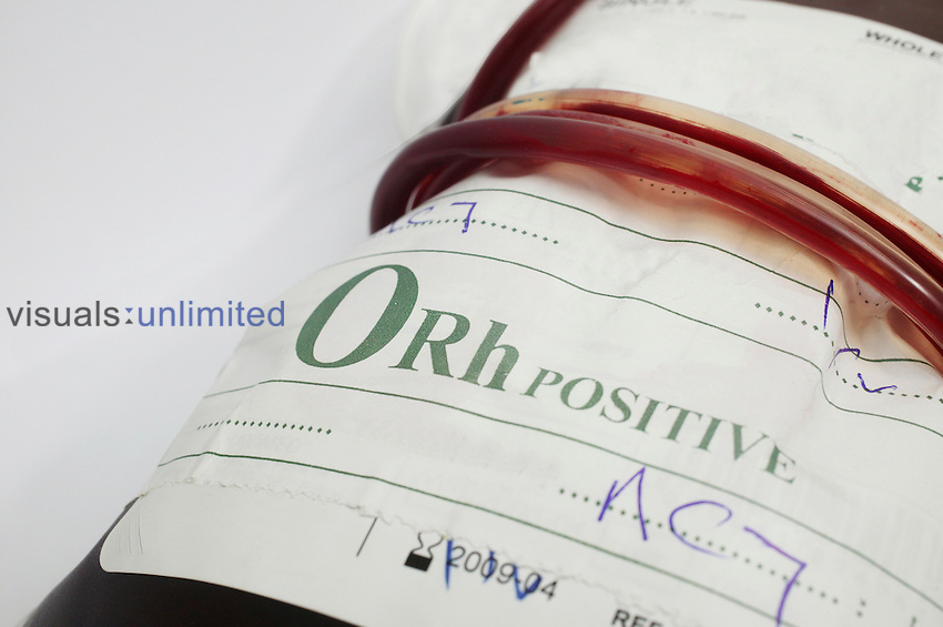 Blood bag containing type O+ (Positive) blood...O+ blood contains no antgens, and has both anti-a and anti-b antibodies present. There is also a presence of RhD antigen of the Rhesus blood group system Royalty Free
