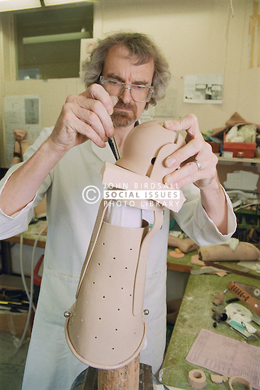 Prosthetic workshop; finishing aboveknee limb,
