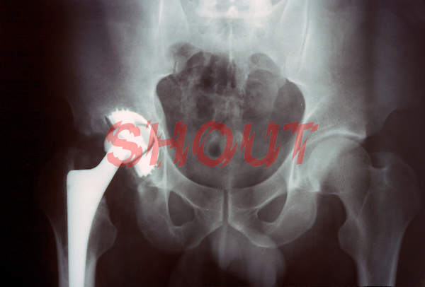 An x-ray of a total hip replacement. This image may only be used to portray the subject in a positive manner..©shoutpictures.com..john@shoutpictures.com