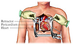 This surgical illustration depicts the exposure of a coronary artery bypass procedure. The chest and pericardium have been incised and retracted to expose the heart and all the great vessels, including the aorta, superior vena cava, and pulmonary artery.