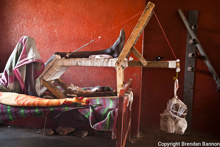 A man recovers,his broken leg in traction at  the MSF hospital in Lankien, South Sudan.