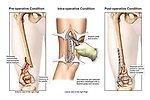 Fractured Femur (Broken Leg) with Surgical Fixation. This medical exhibit reveals a severely comminuted right supracondylar fracture, lateral condylar fracture and patellar fracture with fixation surgery performed through an open lateral incision. An anterior post-operative view depicts all the fractures reduced with a lateral fixation plate on the distal femur and cortical screws through the patella and the lateral condyle.