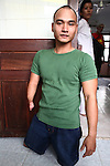 Despite being born without legs and a deformed right arm, Nguyen Hong Loi, 24, has won several medals as a disabled freestyle swimming champion. He is pictured in the Agent Orange children's ward of Tu Du Hospital in Ho Chi Minh City, Vietnam, where he works with children who suffer similar disabiities. About 500 of the 60,000 children delivered each year at the maternity hospital, Vietnam's largest, are born with deformities, some because of Agent Orange, according to doctors. May 1, 2013.