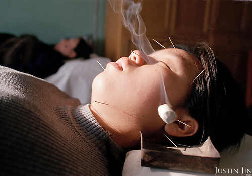 Burning herbal incense enhances acupuncture. ..Photo taken March 2000