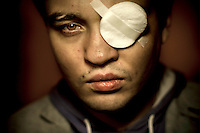 Dmitry Chizhenvskiy, 27, had his left eye permanently destroyed by in a homophobic attack on 3 November 2013 when three armed men entered into a private meeting for homosexuals in St. Petersburg. The attackers hit people with baseball bats and, at close range, Dmitry was shot directly into his left eye with an air gun. The perpetrators have not been found. (MANDATORY CREDIT   photo: Mads Nissen/Panos Pictures /Felix Features)