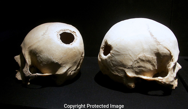 Skulls showing signs of early brain surgery. Larco Museum, LIma, Peru