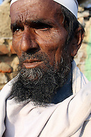 A villager who has lost his left eye due to infection, in a small community in the city of Kanpur.