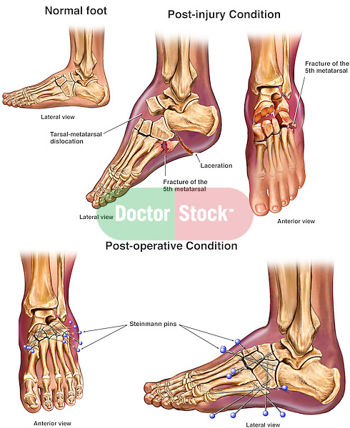 Left Foot Crush Injuries With Initial Surgical Fixation Doctor Stock