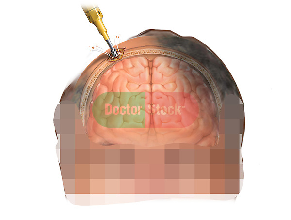 This stock medical image features a coronal (anterior cut section) view of a white male with a drill making a hole into the skull for placement of an  Intracranial pressure monitor (ICP) bolt.