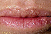 SN38-001a  Human lips