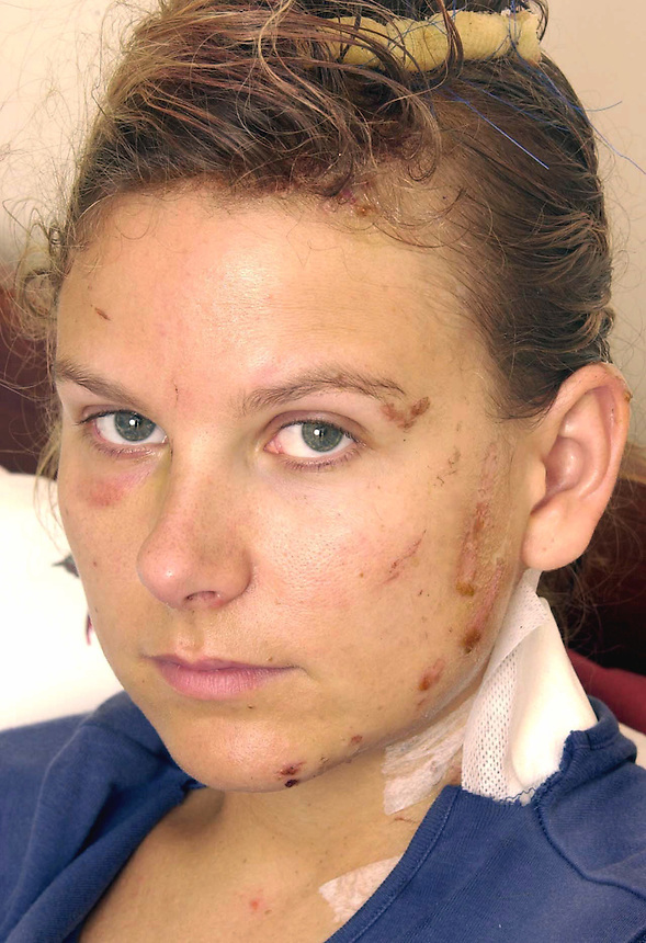 NINA KOVACEVIC NO 30 BUS VICTIM.PIC JAYNE RUSSELL.11.7.2005