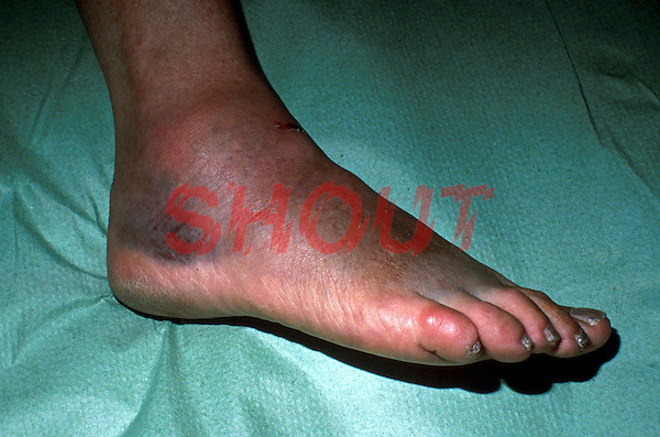 Ankle injury, torn ligaments. This image may only be used to portray the subject in a positive manner..©shoutpictures.com..john@shoutpictures.com