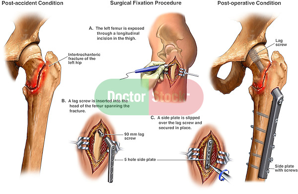 Hip Injury - Fractures with Fixation Surgery. This exhibit features several surgically oriented illustrations describing a left hip fracture with the subsequent fixation and stabilization of those fractures with a (Richards) compression lag screw and side plate.