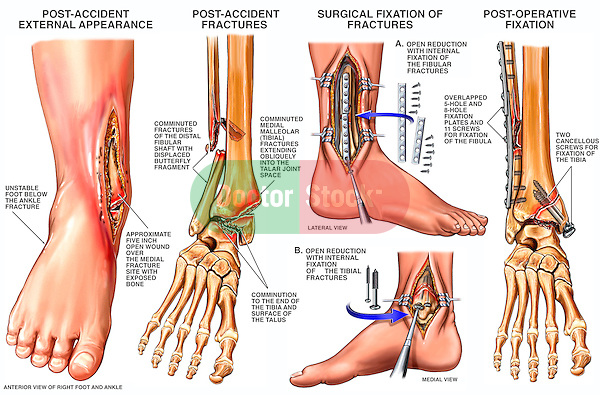Open Fracture Dislocation Of The Right Ankle Doctor Stock