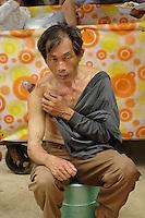 Man receiving medical treatment outdoors at the Fuli Village market, Yangshuo, China