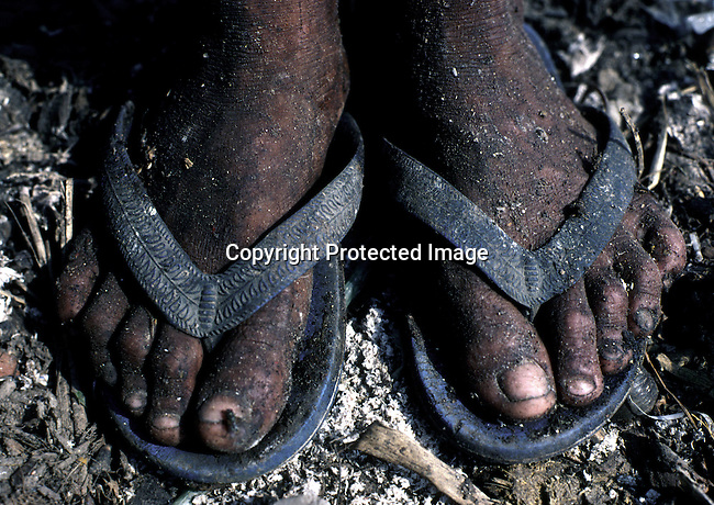 A young girl's feet as she is collecting garbage on March 18, 1998 at Stung Meanchey garbage dump in Phnom Penh, Cambodia. Thousands of children makes a living collecting garbage and scrap there making one USD a day..(Photo: Per-Anders Pettersson/ Liaison Agency)