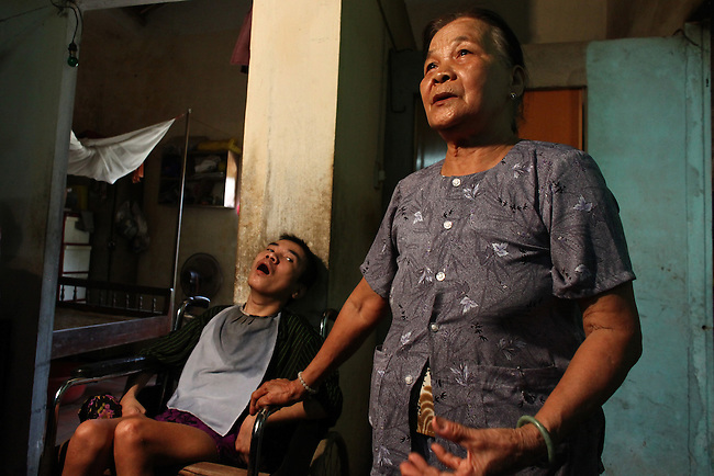 Tran Duc Nghia 39, watches as his mother, 75-year-old Hoang Thi The, is interviewed by a television news crew at the home in Da Nang, Vietnam. Nghia and his younger sister are second-generation victims of dioxin exposure, the result of the U.S. military's use of Agent Orange and other herbicides during the Vietnam War more than 40 years ago. According to his mother, Nghia was born normally, but began developing problems by the time he was 12. He is now completely physically and mentally disabled, and his sister is beginning to exhibit many of the same conditions. The family gets no government support, and Hoang Thi Te, 75, the mother, worries who will take care of her children when she is gone. She is bitter at the U.S. government for using toxic herbicides during the war, and says she wishes the U.S. military would have killed her children right away, instead of leaving to suffer decades later. ?I am very angry. They are heartless people,? she says of U.S. policymakers. ?They are the cause of this illness for my children. I've had to care for him for almost 40 years. I feel like I've been in prison.? The Vietnam Red Cross estimates that at least 3 million Vietnamese suffer from illnesses related to dioxin exposure, including at least 150,000 people born with severe birth defects since the end of the war. The U.S. government is paying to clean up dioxin-contaminated soil at the Da Nang airport, which served as a major U.S. base during the conflict. But the U.S. government still denies that dioxin is to blame for widespread health problems in Vietnam and has never provided any money specifically to help the country's Agent Orange victims. March 18, 2013.