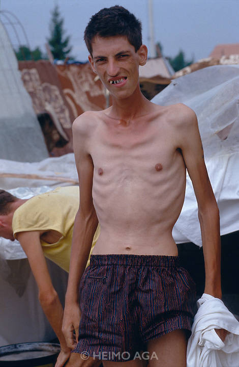 Starving Croat and Bosnian civilians held at Trnopolje detention camp run by Serbs.