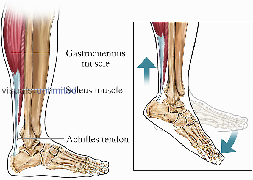 Medical illustrations that explain the anatomy and physiology of the achilles tendon of the human ankle. The first illustration shows the achilles tendon, soleus muscle, gastrocnemius muscle, and the lower leg and foot bones from a lateral view. The second image is an enlargement of the same ankle and foot anatomy in an extended position, demonstrating the action of the achilles tendon during extension when the foot is extended.
