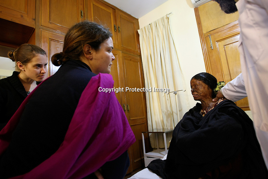 A burns specialist team, made by Ruth Ann Fanstone, burns physiotherapist, Fiona Procter, burns occupational therapist and Marianne Carter, burns nurse, are assessing the acid survivors at Acid Survivors Foundation Pakistan Center, in Islamabad-2009