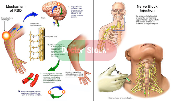 This  medical illustration series pictures Reflex Sympathetic Dystrophy (RSD) of the upper extremity. Another term for this condition is Complex Regional Pain Syndrome, or CRPS. The cycle of pain is shown initiating from an injury to the elbow. Impulses are shown traveling to the brain and then down the sympathetic chain to the original site of injury producing inflammation, blood vessel spasm, pain and swelling. The condition is treated with a nerve block to the cervical and thoracic spine.