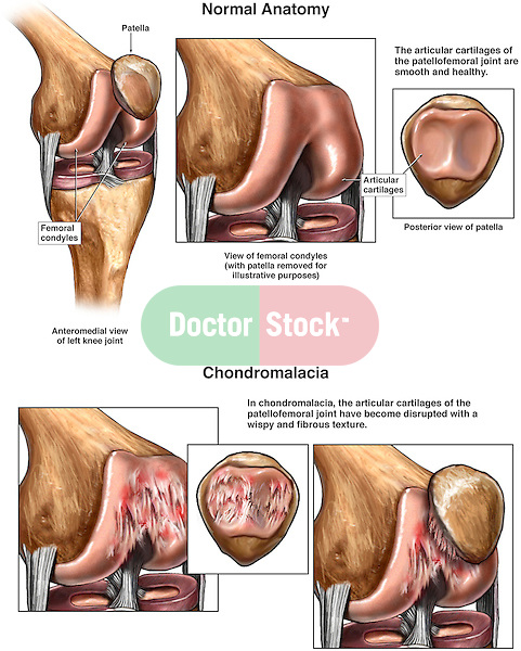 Knee Joint Arthritis - Patellofemoral Chondromalacia. This full color stock medical illustration illustrates the condition of chondromalacia in the knee joint.  The effects of  chondromalacia on the cartilaginous surfaces of the patella, and femoral condyles are clearly illustrated and compared to the normal anatomy.