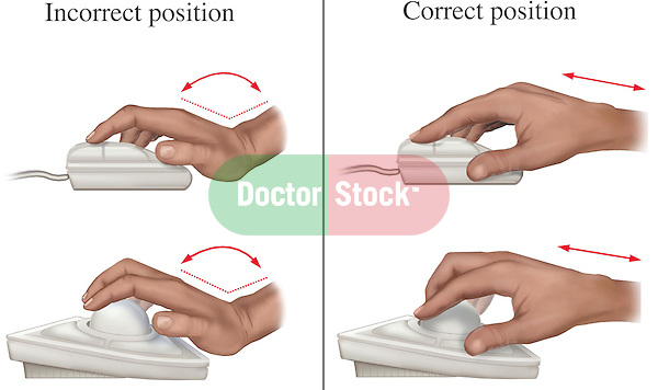 Carpal Tunnel Syndrome Prevention - Correct vs. Incorrect Use of Computer Mouse. This full color medical exhibit shows two pairs of hands. The first pair of hands show the correct and incorrect hand positions to avoid carpal tunnel syndrome when using a mouse. The second pair of hands show the correct and incorrect hand positions to avoid carpal tunnel syndrome when using a trackball..