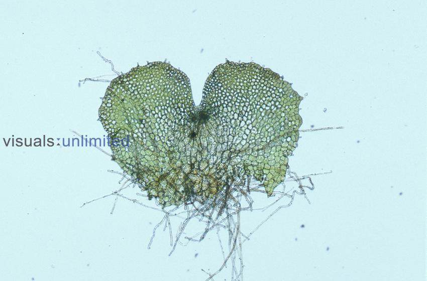Fern prothallium with sex structures. LM