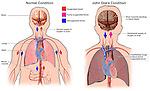 Anesthetized Lungs Leading to Brain Hypoxia