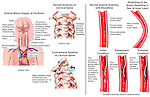 Whiplash Injury - Vertebral Artery Damage. Shows stretching and tearing of the vertebral artery in the neck.