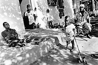 Mozambique. Province of Tete. Tete. Town hospital. The non governmental organisation (ngo) Handicap International take cares of persons who suffered amputations due to the war, mines or various accidents. They build protheses and ajust them to the diverse casualties and sitauations. All persons  are in this picture amputated because of the mines. The small girl was on the back of her mother when she stepped on a mine which exploded and took off both the right leg. © 1992 Didier Ruef