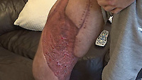 Pictured: Luke James' leg<br /> Re: A man owes his life to his sister who happened to be driving past after his car plunged down an embankment, medics have said.<br /> Luke James, 25, from Swansea almost severed his right leg completely and could have bled to death if Sammy-Jo James had not applied a tourniquet before emergency services arrived.<br /> At the time, they both worked for a private ambulance company.<br /> Trauma consultant Ian Pallister said: &quot;She saved his life.&quot;<br /> Mr James, the father of an 18-month-old daughter, had lost control of his van a few hundred yards from his home in Caerbont, Swansea Valley, in December.<br /> He has no memory of the crash but his sister, a trained first responder, said: &quot;My training kicked in and I kept a calm head.&quot;