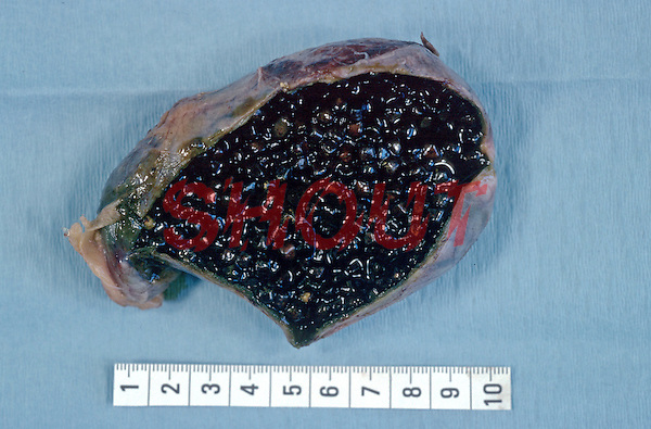 Acutely inflamed gallbladder opened to show stones. Pathology specimen which has been surgically removed. This image may only be used to portray the subject in a positive manner..©shoutpictures.com..john@shoutpictures.com