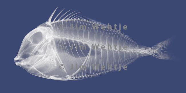 X-ray image of a Naso tang fish (white on blue) by Jim Wehtje, specialist in x-ray art and design images.