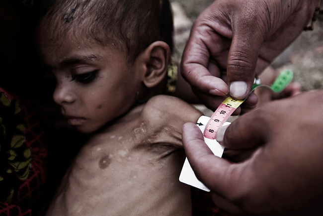 Malnourished and wasting, 9 month old baby girl Roshini has her arm measurements taken by an NGO worker in Silanagar village outside Shivpuri, Madhya Pradesh state in India. Despite 15 yeas of economic growth the incidence of child malnutrition has barely changed -- 46 percent of children under 5 in India are malnourished: twice the rate of sub Saharan Africa.. A report released last week said a mixture of poor governance , the caste system dis-empowerment of women and superstition are preventing children from getting the nutrition they need, condemning another generation to brain damage, low earning potential and early death. At the moment 3000 children a day die in India as a result of malnutrition.