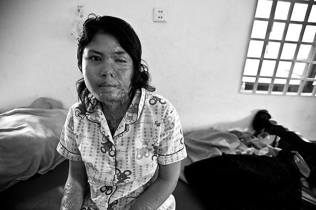 CASC(CAmbodian Acid Survivors Charity), Phnom Penh