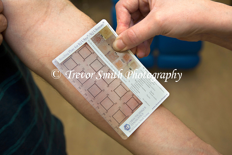 IQ Ultra patch test chambers for detecting skin allergies