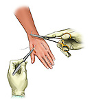 Closure of dorsal hand fasciotomies; depicts the closure of dorsal hand fasciotomies