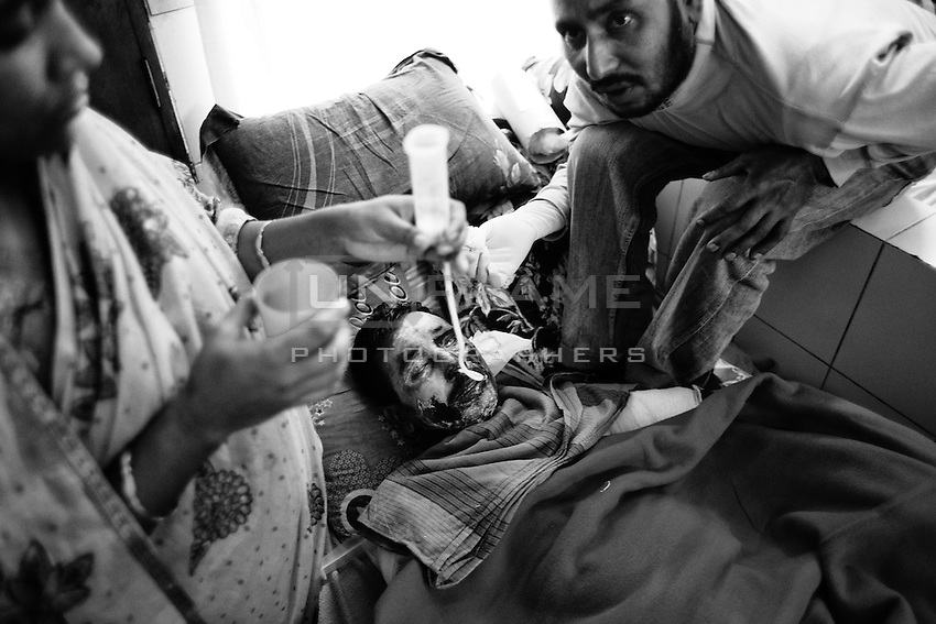 Jamadul Islam, 28, a young man, who sustained burn injuries in a petrol bomb attack on his motorcycle by miscreants in Kansat upazila of Chapainawabganj district on January 3, was shifted to Dhaka Medical College Hospital on12th January 2013 for better treatment. Jamadul received burn injuries to various parts of the body, including the face. He came under the attack when he was going to his village home from the upazila headquarters. Dhaka, Bangladesh