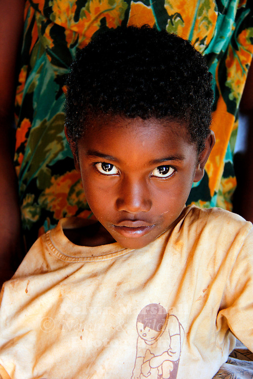 Deep in thought !..a portrait of a young Malagasy boy. Diego Suarez, Northern Madagascar.