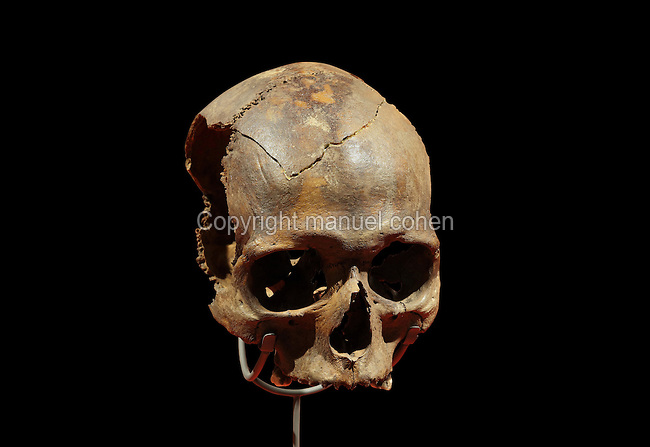 Human skull found in a fort ditch at Vindolanda, belonging to a young rebel from South-West Scotland, whose severed head was displayed on a pole near the fort, in the Vindolanda Museum, Hadrian's Wall, Northumberland, England. Hadrian's Wall was built 73 miles across Britannia, now England, 122-128 AD, under the reign of Emperor Hadrian, ruled 117-138, to mark the Northern extent of the Roman Empire and guard against barbarian attacks from the Picts to the North. The Vindolanda Museum is run by the Vindolanda Charitable Trust and forms part of the Hadrian's Wall UNESCO World Heritage Site. Picture by Manuel Cohen