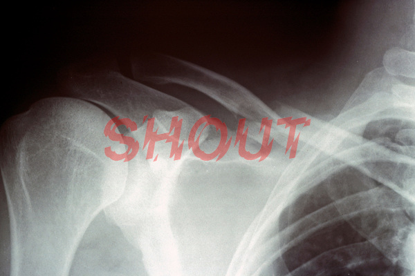 An x-ray of a fracture of the clavicle ( collar bone ). This image may only be used to portray the subject in a positive manner..©shoutpictures.com..john@shoutpictures.com
