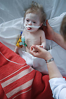 Child receiving post operational medical assistance in ICU unit. Kharkov