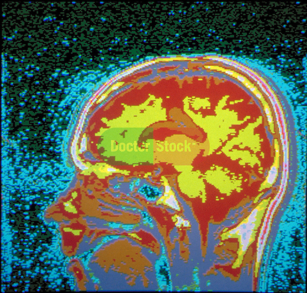 computer screen with image of brain scan, diagnostic
