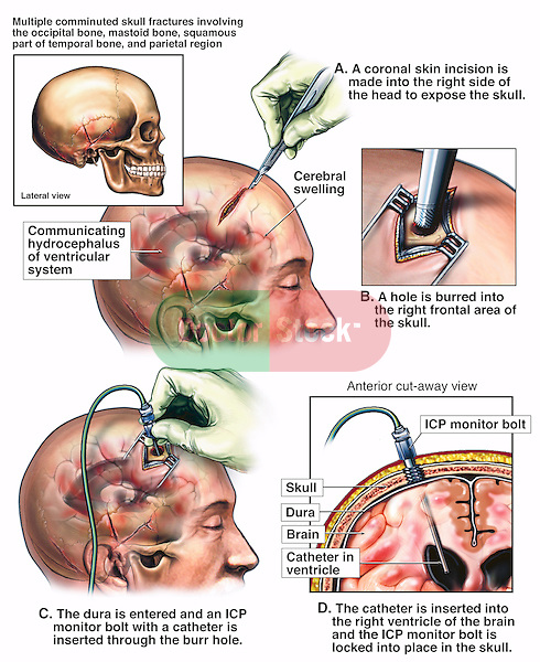 Brain Surgery - Ventriculostomy and Placement of Intracranial Pressure (ICP) Monitor Bolt. Surgical steps following brain injury: A. Incision ino the scalp with a label indicating the hydrocephalus of the brain ventricles, B. Drilling into the frontal area of the skull, C.  Dura opened and an intracranial pressure monitor bolt being inserted, D. Final position of the intracranial pressure monitor bolt with catheter tip residing deep in the ventricle of the brain.