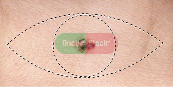 This stock medical illustration image features the surgical incision to remove or excise a melanoma, a highly malignant type of skin cancer that arises in melanocytes. The entire melanoma along with a 1.5 cm radius of normal skin around the original lesion is also removed.